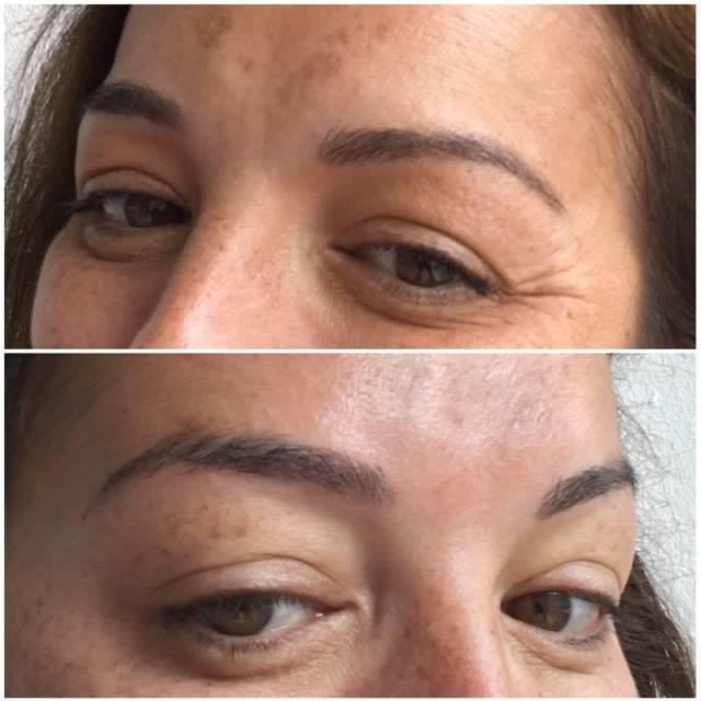 botox voor en na